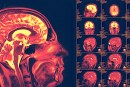 Risonanze magnetiche senza collaudo: Asl Lecce da tre anni le usa sui pazienti