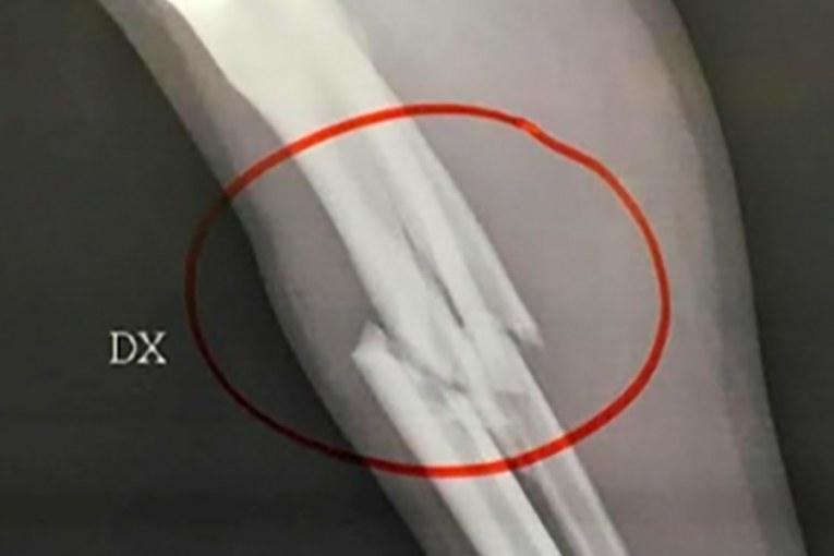 osso rotto frattura